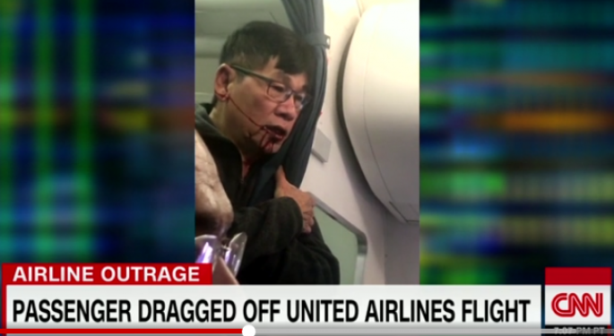Pummeled United Passenger Suffered Concussion, Broken Nose; Will Likely Sue